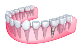 Single-Tooth Replacement | Orange County Dental Implant Center