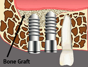 bone-graft1